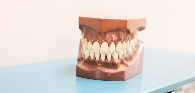 Teeth-@sssyexap